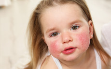 Rashes That Require Attention in Children