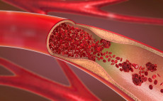 Medication Treatment is Prioritized in Blocked Blood Vessels of Legs